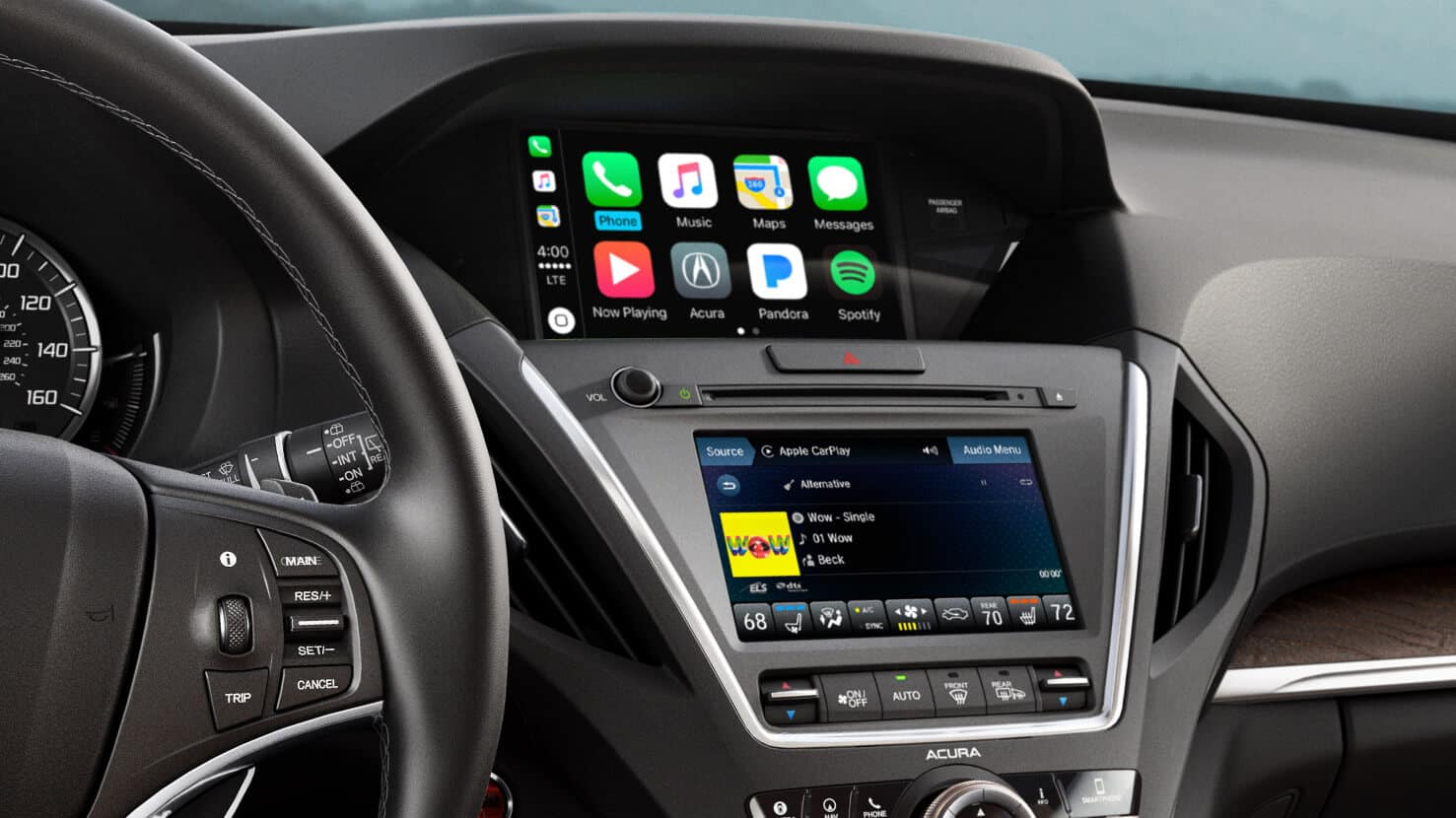 advanced technology acura entertainment advance escondido mdx package packages banner